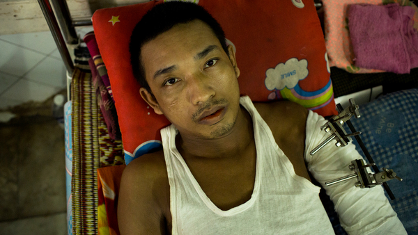 A man rests in the traumatology unit of Yangon General Hospital after having his arm surgically repaired