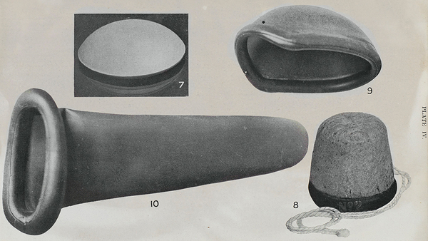 """Fig. 10: A feminine sheath or """"Capote Anglaise"""". From Contraception (birth control): a manual for the medical and legal professions, 1923"""