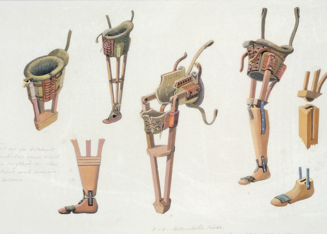 Wooden prostheses