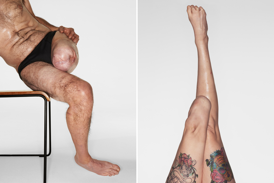 Side-by-side images of a man and woman semi-nude. They both have leg amputations