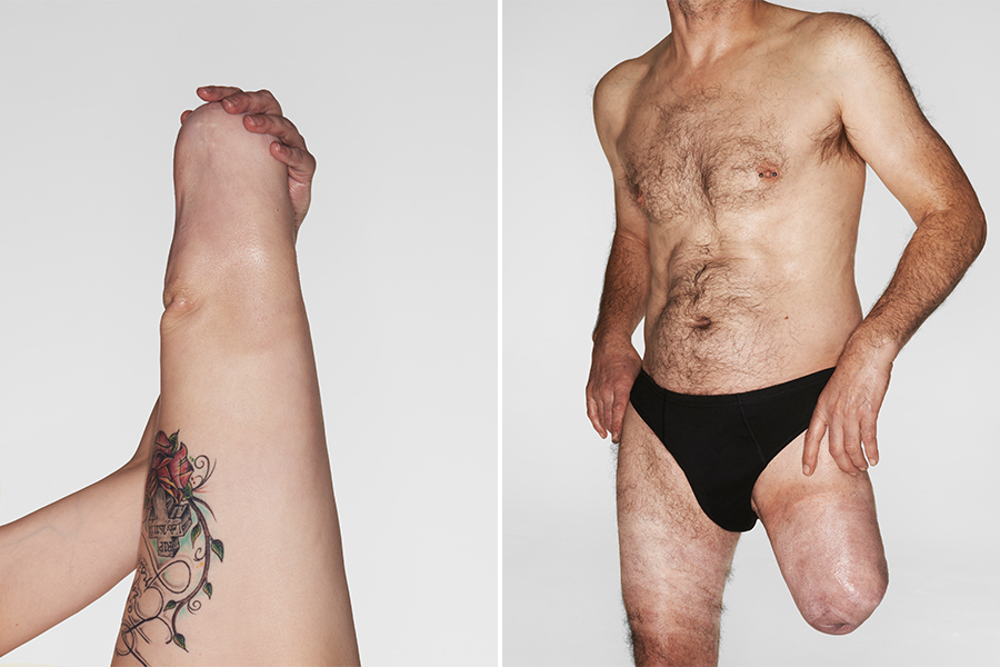 Side-by-side images of a woman and a man semi-nude. They both have leg amputations