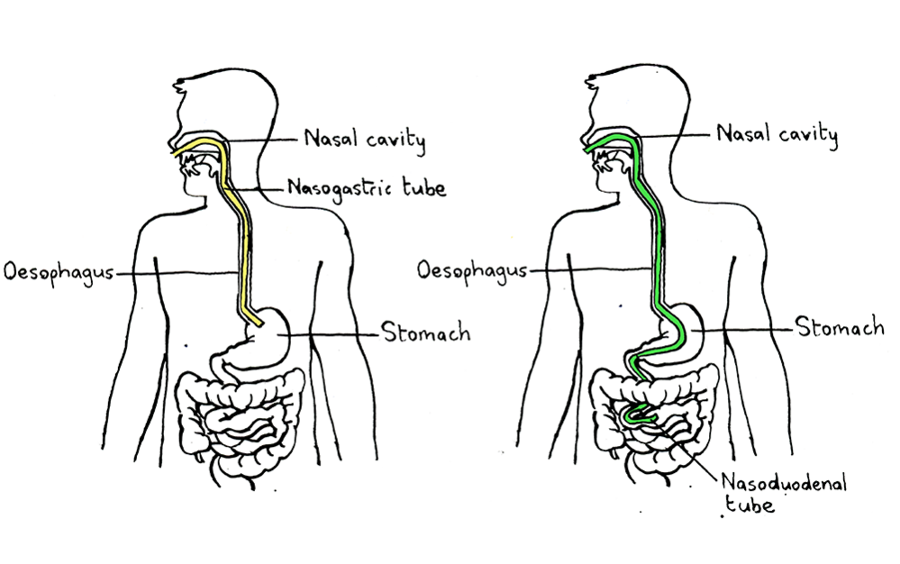 Illustration of nasogastric and nasoduodenal tube-based faecal transplants