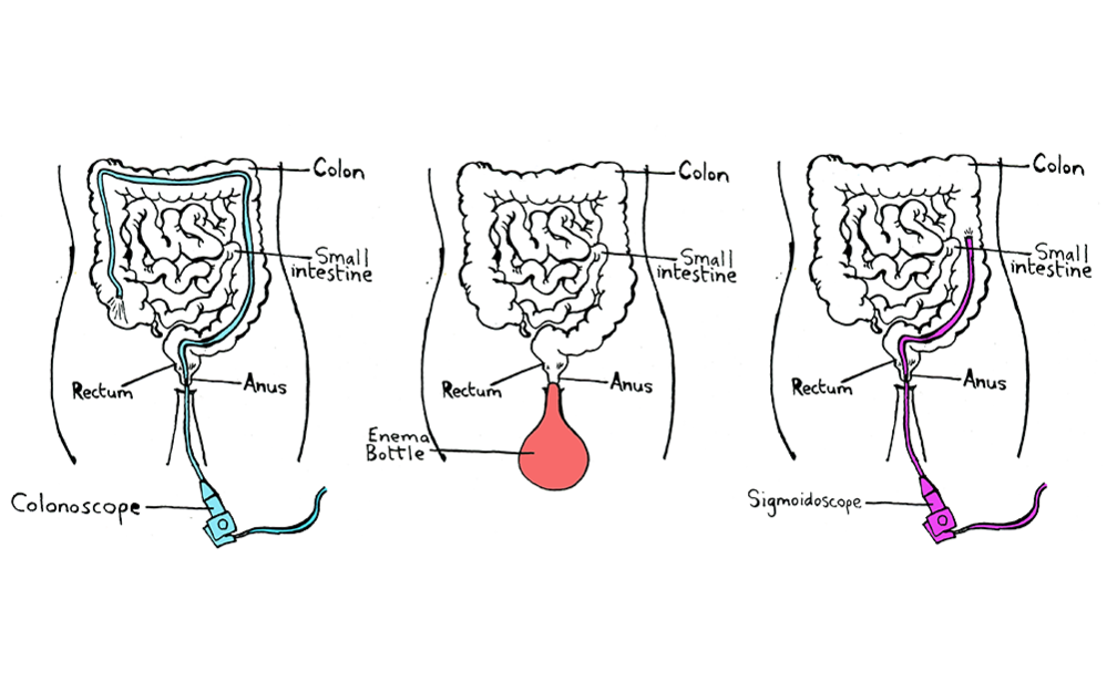 Three ways to perform faecal transplants. From left: colonscopy, enema and sigmoidoscopy